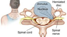 Perth Wellness Centre Blogs - How to treat a Herniated Disc